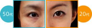 around_eyes_effect_photo01